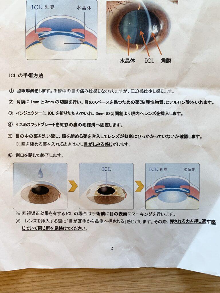 ICL手術@小沢眼科内科病院